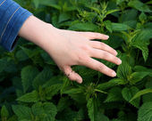 Nettle sting a skin — Stock Photo