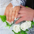 Hands of a newly-married couple with wedding rin — Stock Photo