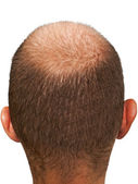 Bald head — Stock Photo
