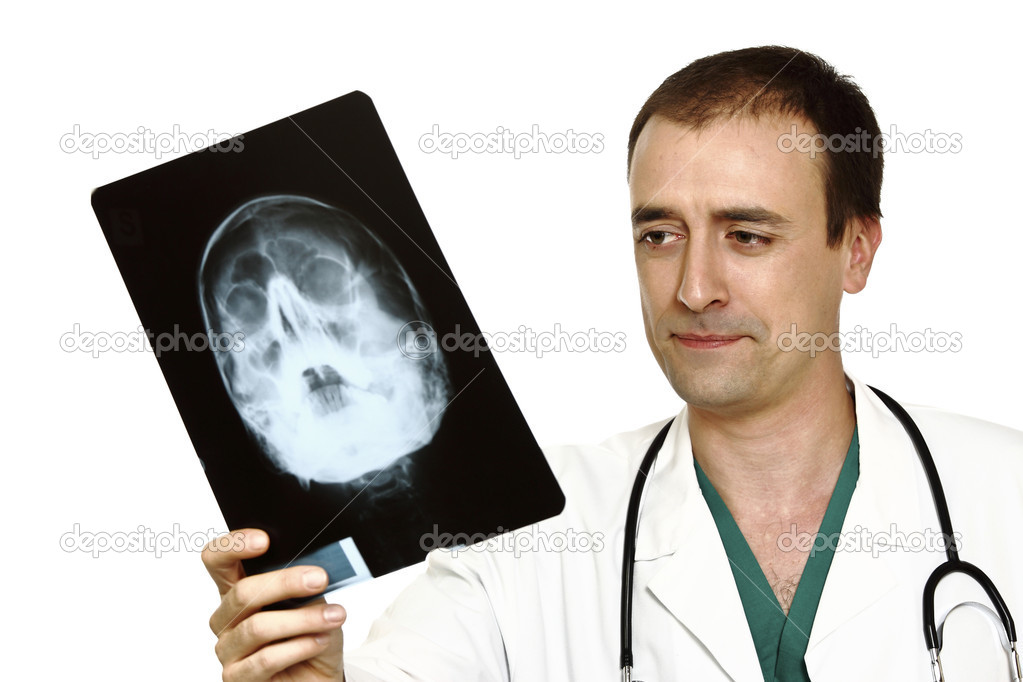 Young caucasian doctor and x-ray of head isolated on white — Stock Photo #1869169