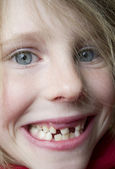 Dentition. — Stock Photo