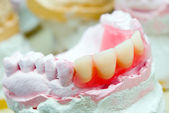 Dental prosthetic — Stock Photo