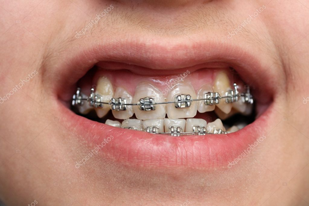 Close-up view on children teeth with braces — Stock Photo #2130876