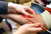 Creation of an artificial wound — Stock Photo
