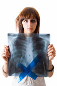 Woman wiht x-ray image of lungs — Stock Photo