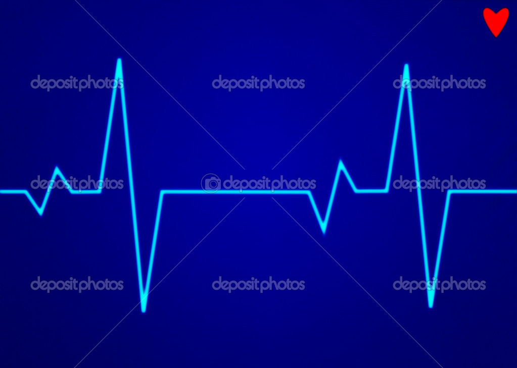 Electronic cardiogram ECG heart beat trace on a monitor. — Stock Photo #2613539