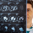 Doctor with tomogram — Stock Photo #1310873