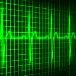Cardiogram — Stock Photo #1325748