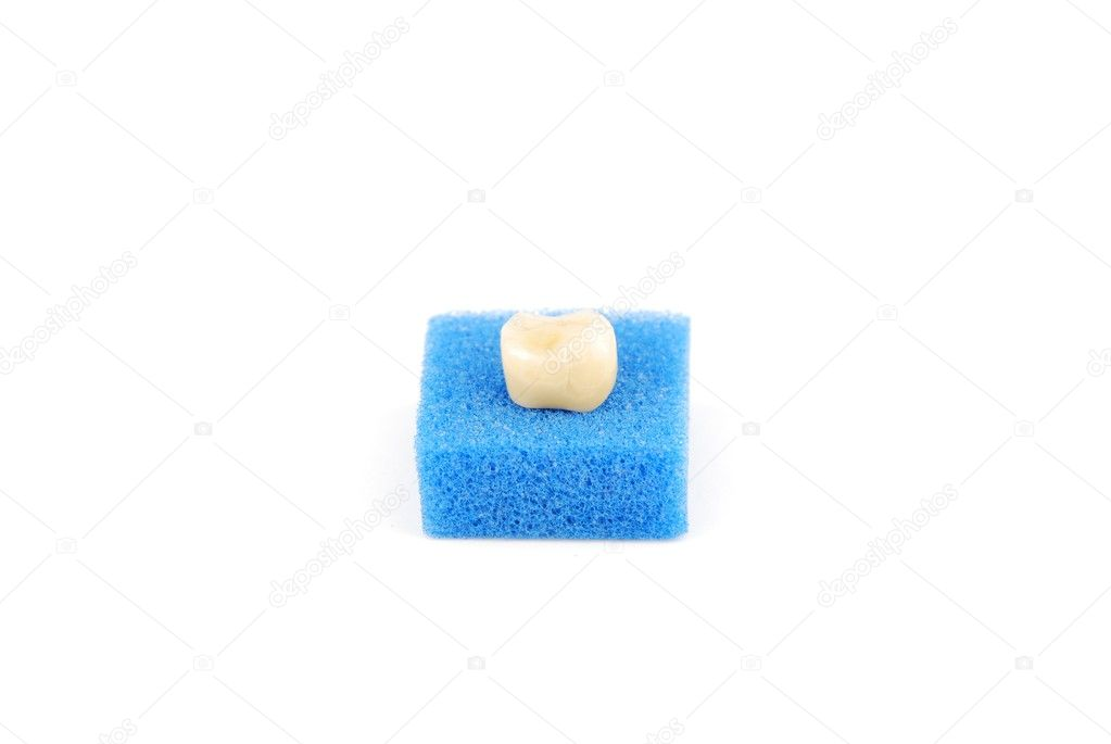 Bonded crown non precious of lower right six tooth (on a blue sponge) — Stock Photo #2371888
