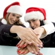 Partners showing beautiful hands — Stock Photo