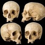 Human Skull — Stock Photo #1339795