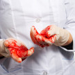 Operative surgery. Gloves in blood. — Stock Photo #1400342