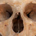 Real skull of human. — Stock Photo