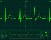 Heart monitor screen — Stock Photo