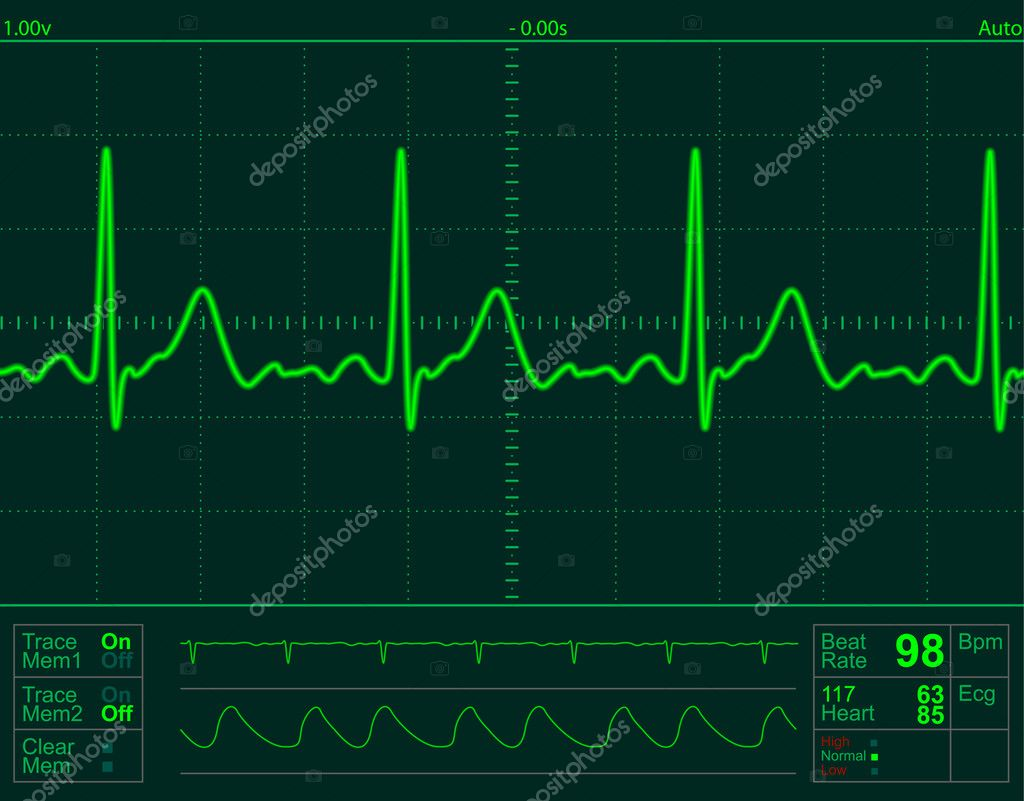 Heart monitor screen with normal beat signal — Stock Photo #1605243