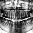 Dental scan x-ray - Stockfoto