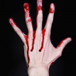 Bloody human hand on black background — Stock Photo