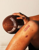 ACL Football Injury — Stock Photo