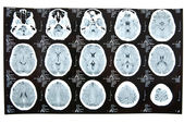 Human brain tomography — Stock Photo