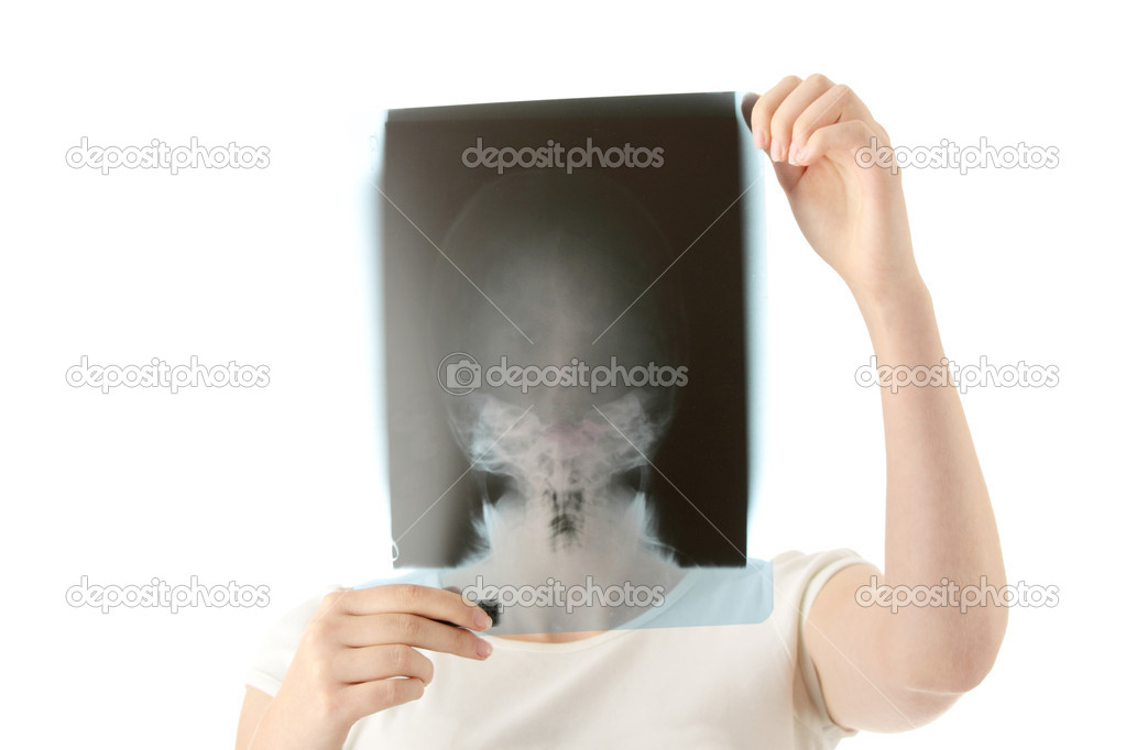 Female doctor examining a haed x-ray photo scan. Isolated on white — Stock Photo #1619863