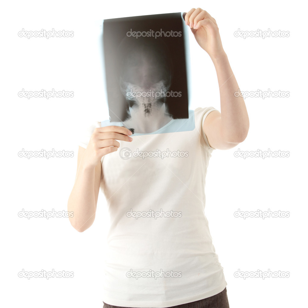 Female doctor examining a haed x-ray photo scan. Isolated on white  Stock Photo #1619870