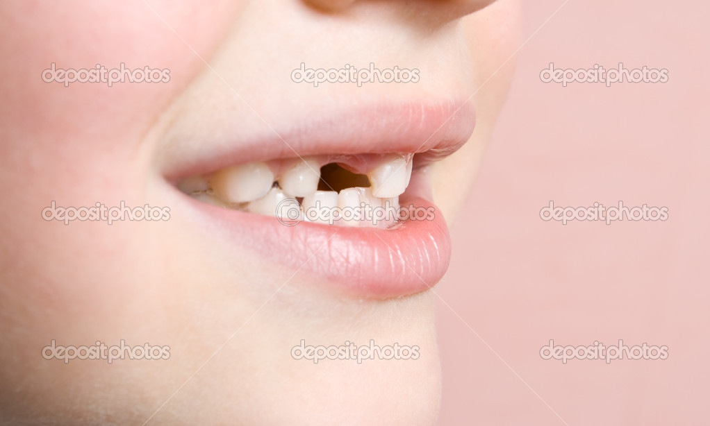 Lost a tooth  — Stock Photo #1767079