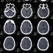 Stock Photo: Magnetic resonance of brain
