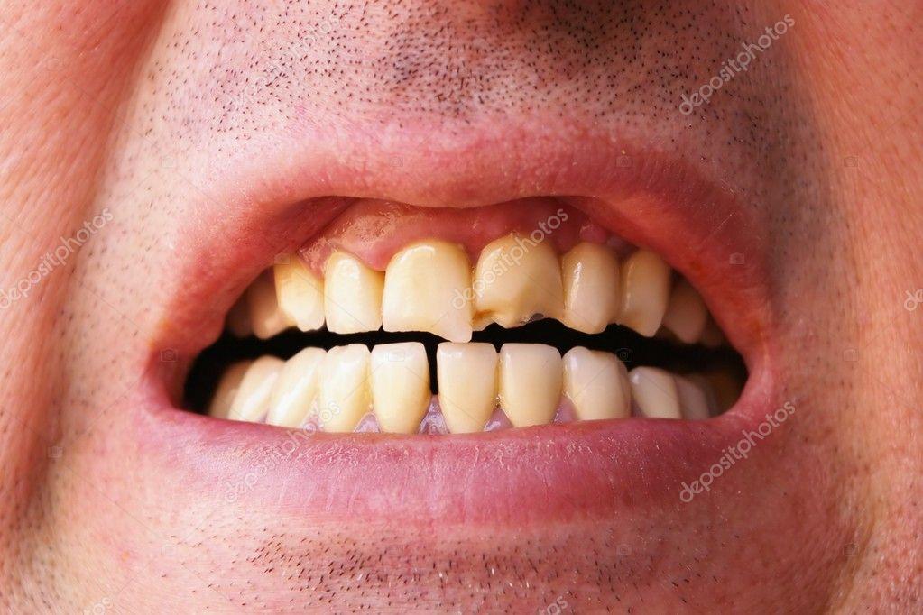 Ломающиеся зубы сонник