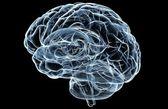 Brain X-Ray — Stock Photo