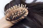 Hairloss. — Stock Photo