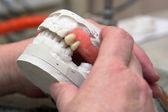 Dental prosthesis — Stock Photo