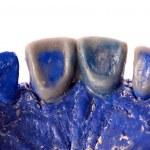 Human teeth, model — Stock Photo