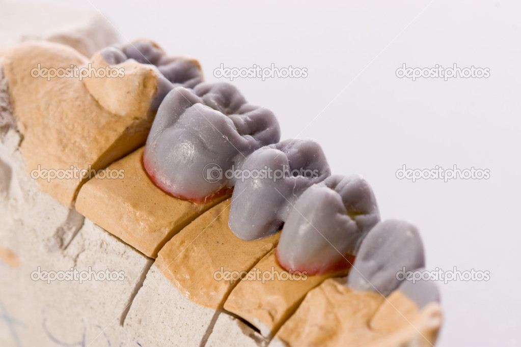 Gypsum model of a human teeth on white background — Stock Photo #2107148