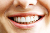 Woman teeth 1 — Stock Photo