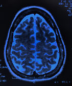 Brain MRI — Stock Photo