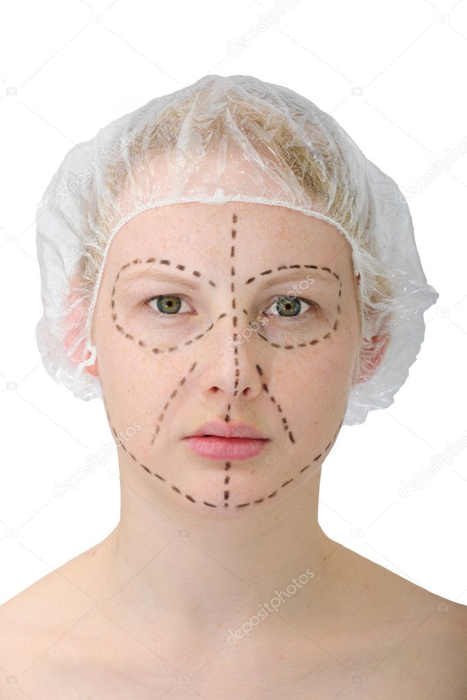 Woman before plastic surgery — Stock Photo #2282298
