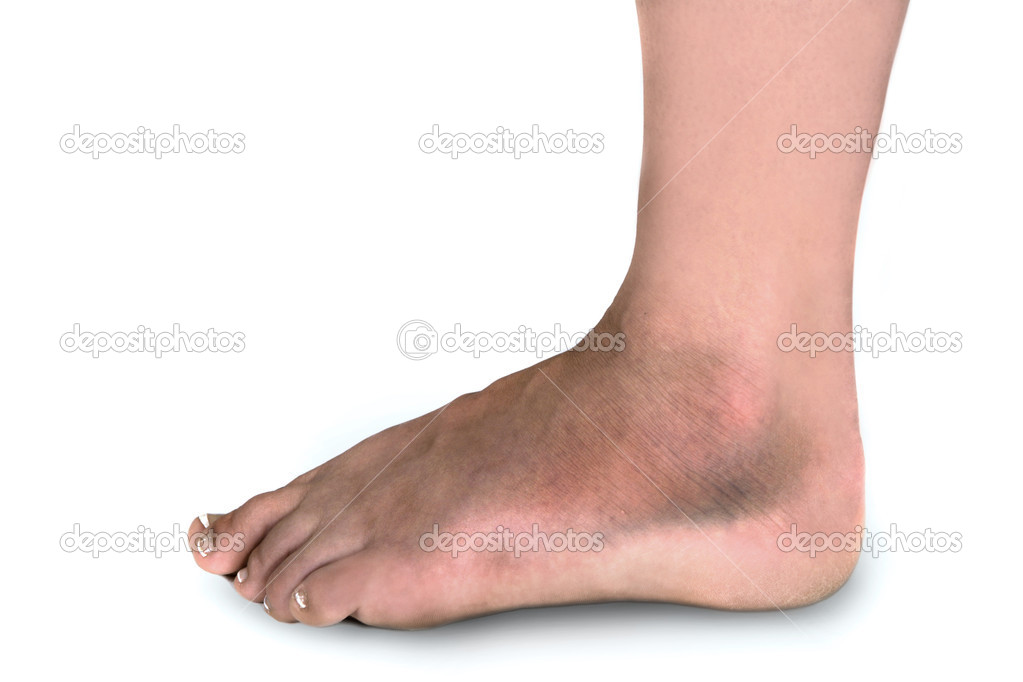Woman With Swollen Broken Foot Covered With Bruises on White Background — Stock Photo #2204545