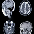 Stock Photo: Real MRI/ MR(Magnetic Resonance Angi