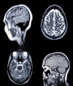 A real MRI/ MRA (Magnetic Resonance Angi — Stok fotoğraf
