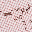 Stock Photo: Cardiographical test results