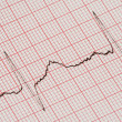 Stock Photo: ECG graph