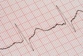 ECG graph — Stock Photo