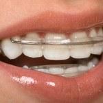 Dental Braces — Stock Photo