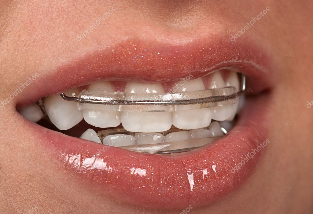 Girl with dental braces ( retainer) — Stock Photo #2217235