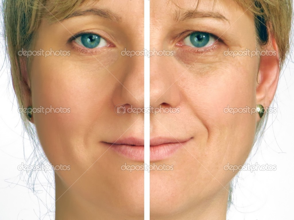 Correction of wrinkles - half  face — Stock Photo #2362787