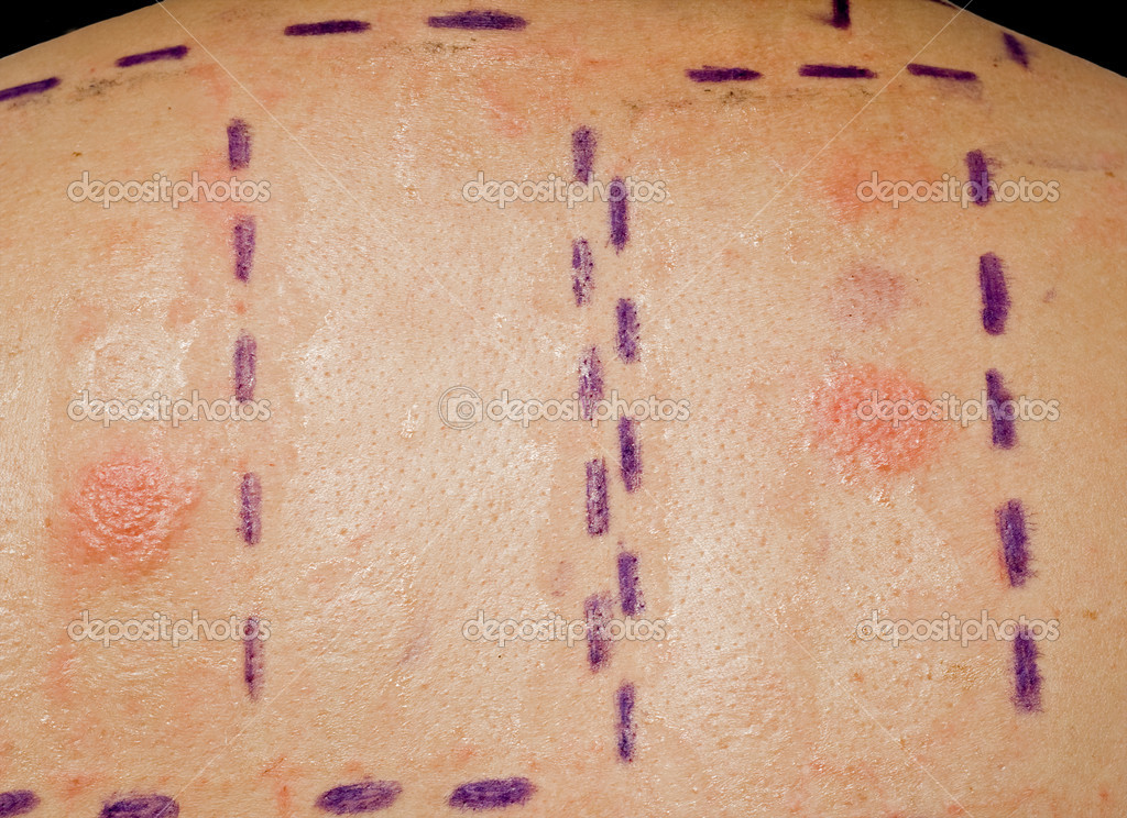 Skin Allergy Patch Test on Back of Patient Showing Redness and Swelling  Stock Photo #2272287