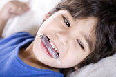 Disabled boy wearing mouth guard — Stock Photo