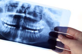 X-ray — Stock Photo