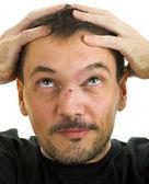 Muž s křivý, zlomený nos und černé oko — Stock fotografie