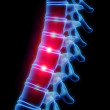 Stock Photo: Painful spine